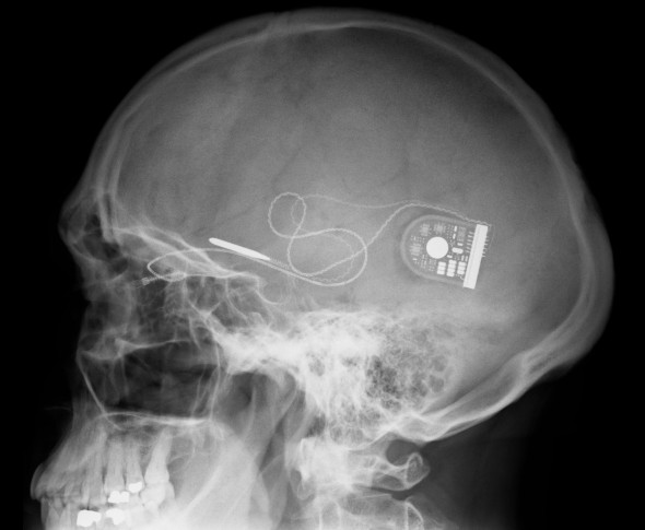 X-ray-showing-position-of-chip-and-power-supply-c-Oxford-Eye-Hospital