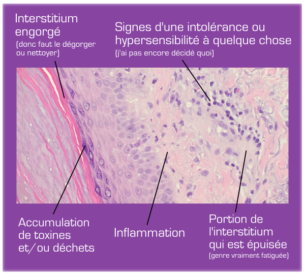 interstitium-12