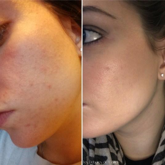 Avant/Après : 4 mois de Curacné (Roaccutane)
