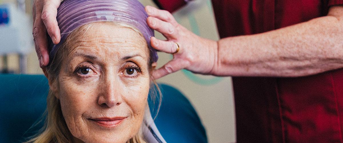 Técnica de resfriamento ajuda a evitar queda de cabelo em pacientes em quimioterapia