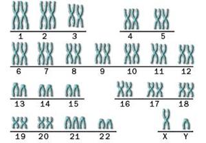kromosom down