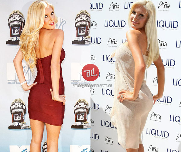 booty implants of Heidi Montag