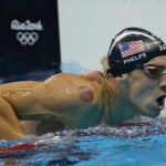 What Are Those Mysterious Purple Spots on Micheal Phelps?