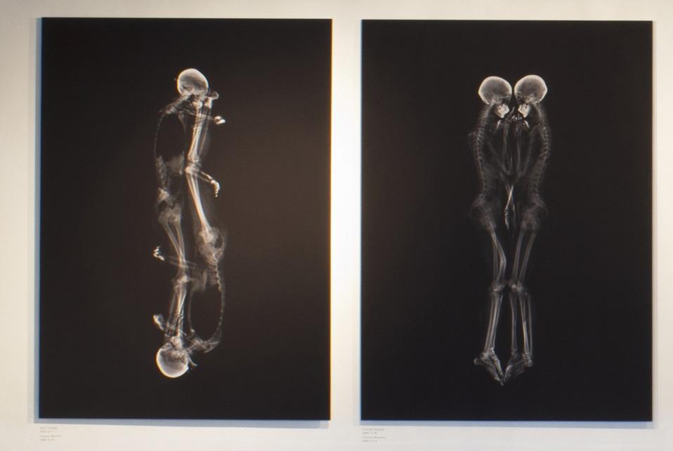 japán röntgen