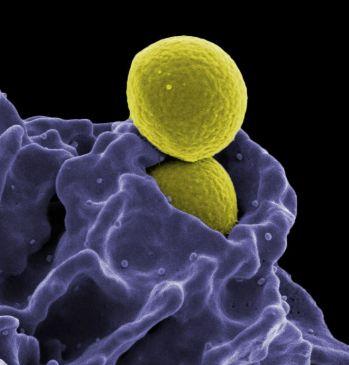 MRSA, Ingestion by Neutrophil