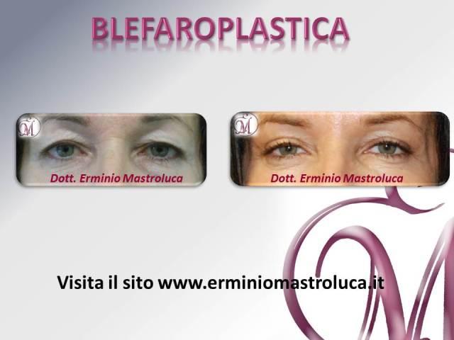 Blefaroplastica 1