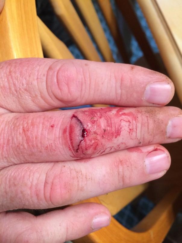Jeff's finger