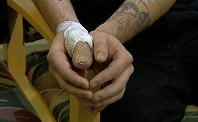 Thumb Toe.Jpg