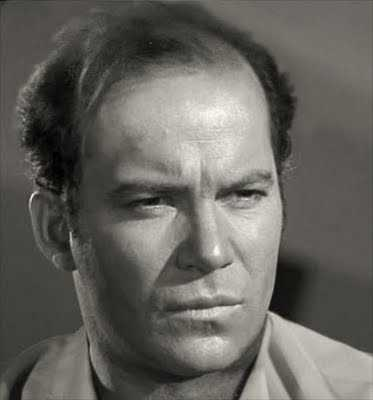 Shatner-Bald