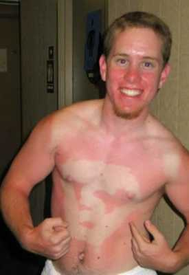 Superman Sunburn