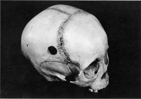 Trepanning-Skull-Granger