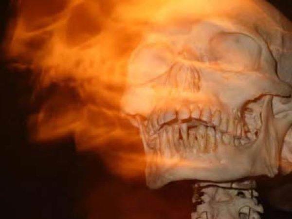 Burning-Skull