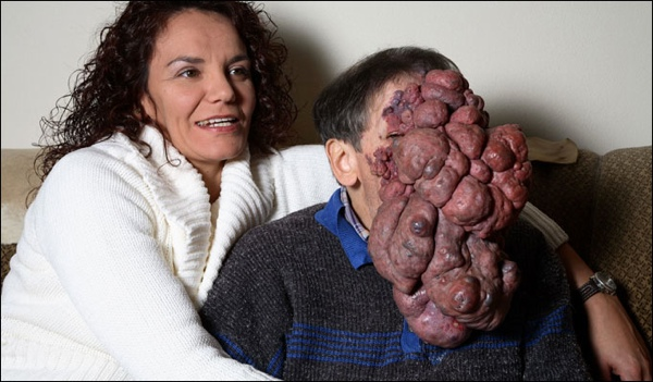Photos of Facial Deformities http://listverse.com/2013/03/26/10-people-with-shocking-and-extreme-deformities/