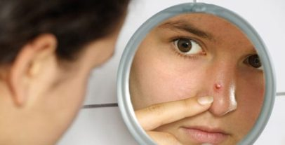 photolibrary_rf_photo_of_girl_looking_at_pimple