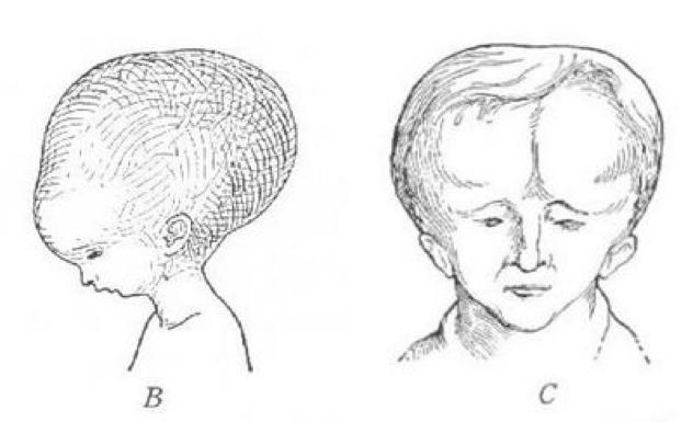 Melon-Heads