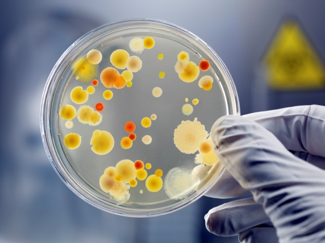 Bacteria-in-a-petri-dish-compressed
