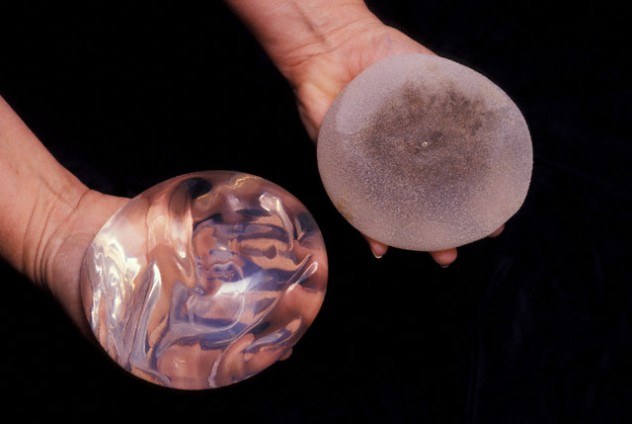 Saline Filled Silicon Breast Implants