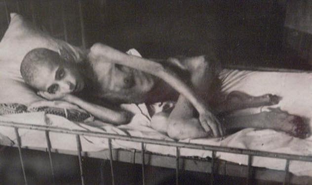 6-starvation-victim-darken