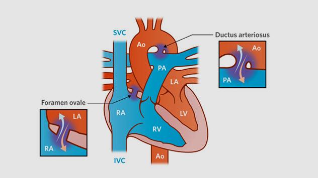 1a-normal-newborn-heart