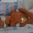 Premature baby born at 24 weeks overcomes the odds