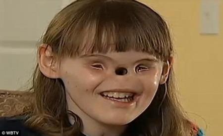 【閲覧注意】女の子は生まれつきの難病 目と鼻がない 医者が文字通り面目を立て直す予定