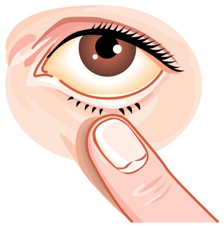 網膜剥離なったけど質問ある?