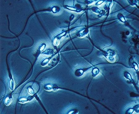【種無し】 無精子症って診断されたけど質問ある?