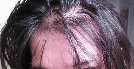 ここ1ヶ月で急激に髪が薄くなってきたんだけど?