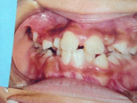 【閲覧注意】歯並び綺麗になったったwwwwwww