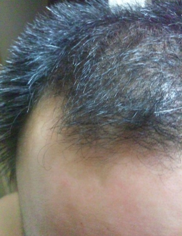 【愕然】嫁が俺のこと「かなりやばいハゲ」って言うんで頭を自撮りした結果wwwwwwwww