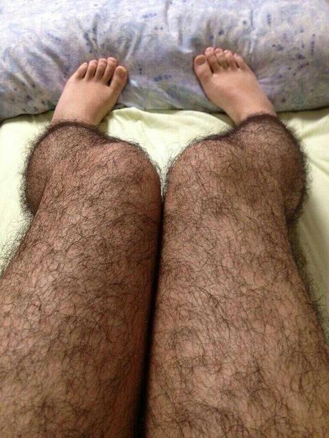 【閲覧注意】俺の脚が猿みたい