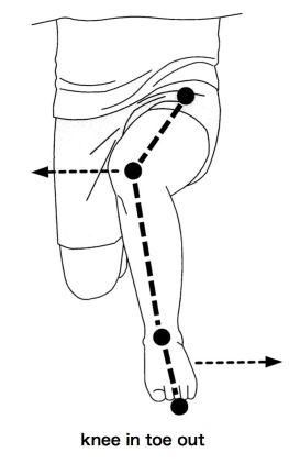 「鵞足炎 kneein」の画像検索結果