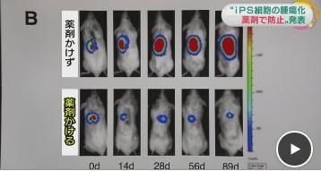iPS細胞に特殊な薬剤をかけることで移植した細胞が腫瘍化するのを防げたことが判明!
