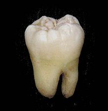 眠れないくらい歯が痛かったから歯医者行った結果www