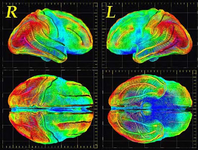 Recent findings in neuroimaging and psychopathy: diagnostic, legal, and ethical implications