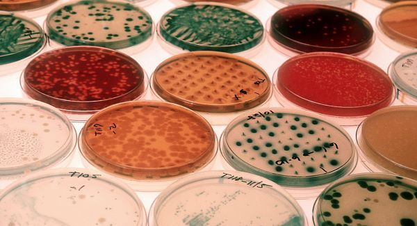 bacteriaPetridishes_large