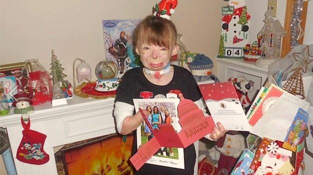 8-Year-Old Girl Who Lost Family In Fire Receives 300,000 Christmas Cards