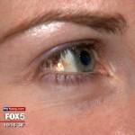 Ny trend från USA: Operera in bling bling i ögat