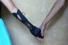 Gorgeous 3D printed Prosthetic Born of Boredom
