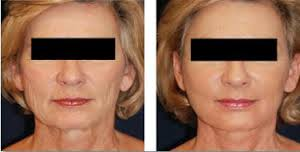 -50% sur notre soin lifting et contour des yeux ( MICRODERMABRASION!!)
