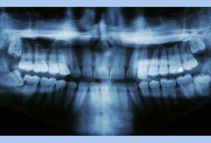wissdom teeth xray