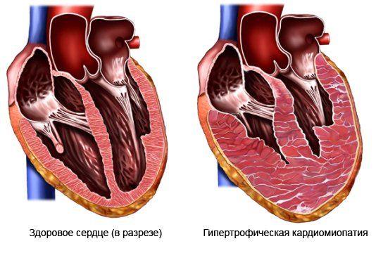 гипертрофия сердца