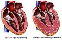 Как тренировать сердце?