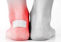 Распространенные травмы бегунов: мазоли и растяжение голеностопа