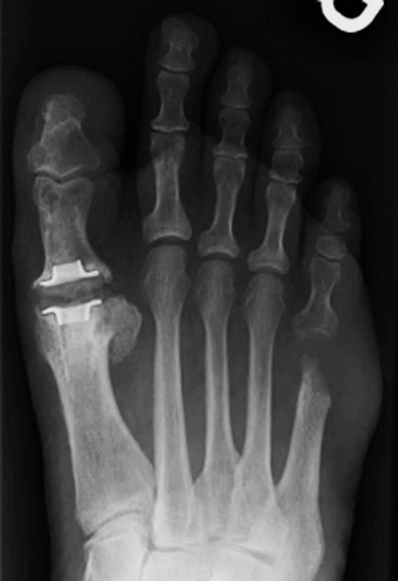image of Cpt Code For Great Toe Arthroplasty 01