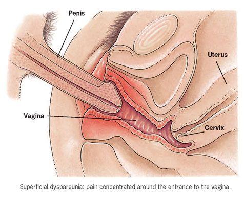 penis in vagina diagram