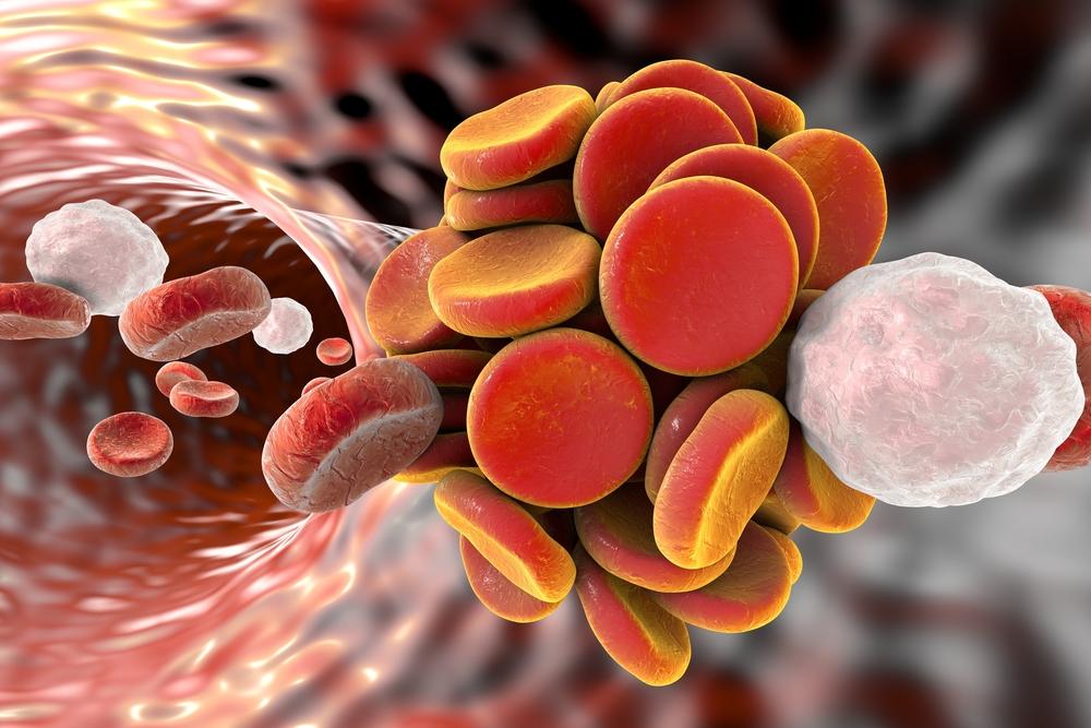 Aptahem kommenterar positiva studieresultat med Apta-1