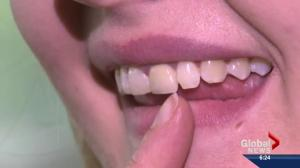 Health risks of mouth piercings