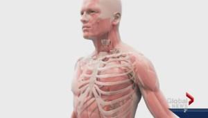 Pigs lungs help demonstrate breathing