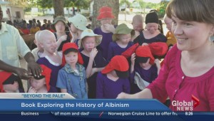 Beyond the Pale: a story about a parent caring for a child with albinism
